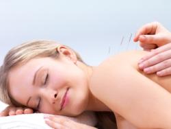 acupuncture belfast, belfast acupuncture, martina dunlop acupuncture
